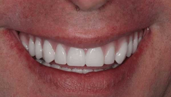 Photo of a real patient with All-on-4 dental implants