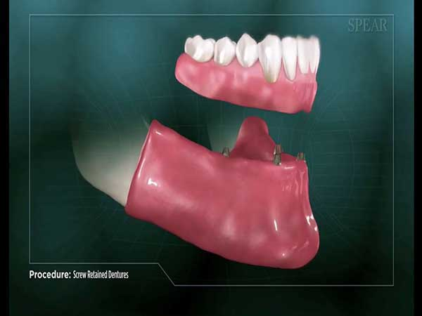 Video thumbnail of an All-on-4 denture being secured to the mouth