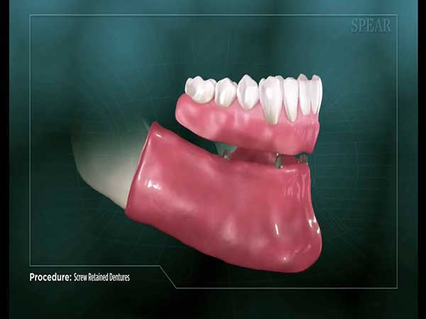 Image of an all-on-4 denture being secured to the mouth